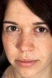 Gesicht mit Freckles Lizenzfreies Stockfoto