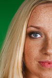 Gesicht mit Freckles stockbild