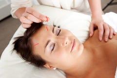 Gesichtsakupunktur-Behandlung-Nadel-Anregung Stockbild