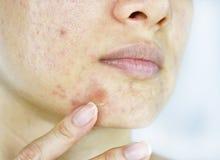 Gesichtshautproblem, Abschluss herauf Frauengesicht mit whitehead Pickeln und Akneflecken Lizenzfreies Stockfoto