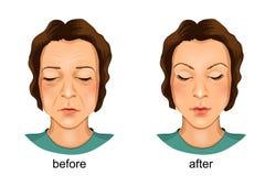 Gesichtsplastik Vorher und nachher vektor abbildung