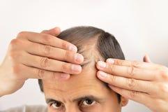 Gesorgt durch seinen Haarausfall stockbild