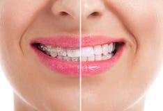 Gesunde Frauenzähne Stockbild