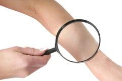 Gesunde Hautkontrolle Stockfotografie