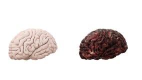 Gesundes Gehirn und Krankheitsgehirn auf weißem Isolat Medizinisches Konzept der Autopsie Krebs und rauchendes Problem Stockbild