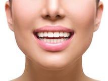 Gesundes Lächeln Weiß werdene Zähne Klammern auf einem weißen Hintergrund Stockfotografie