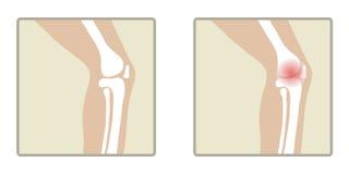 Gesundes und krankes Knie lizenzfreie abbildung