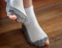 Getragene heraus Socken mit einem Loch und den Zehen. Stockbild
