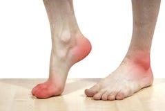 Getrennte Krankheit der Füße Stockfoto