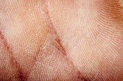 Getrocknete Haut des Menschen Lizenzfreies Stockbild