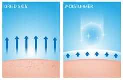 Getrocknete Haut und Haut mit Feuchtigkeitscreme, vorher und nachher Stockfotografie