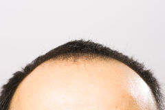 Getting bald. Man's head with thinning hair Stock Images