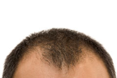 Getting bald. Man's head with thinning hair Royalty Free Stock Photography