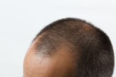 Getting bald Stock Photos