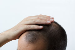 Getting bald Stock Images