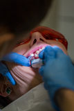 Getting braces on teeth Stock Images
