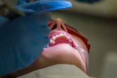 Getting braces on teeth Stock Photography