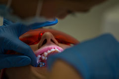 Getting braces on teeth Royalty Free Stock Photo