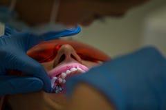 Getting braces on teeth Royalty Free Stock Photo