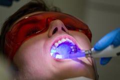 Getting braces on teeth Stock Photos