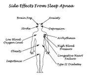 Gevolgen van Slaap Apnea vector illustratie
