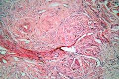 Gewebezellen von einem menschlichen Hals mit Gebärmutterhalskrebszellen Lizenzfreie Stockfotos