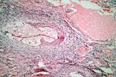 Gewebezellen von einem menschlichen Hals mit Gebärmutterhalskrebszellen Lizenzfreies Stockfoto
