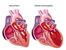 Geweiteter Cardiomyopathy Stockfotografie