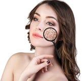 Gezicht van jonge vrouw met droge huid Stock Foto's