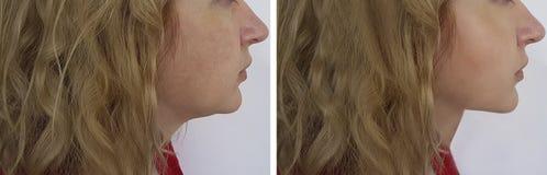 Gezichtsvrouw before and after gezichtsovaal, plastiek royalty-vrije stock foto's