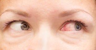 Gezond en geïrriteerd oog stock fotografie