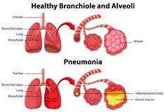 Gezond en ongezond van menselijke longen Stock Foto