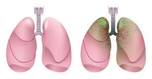 Gezonde menselijke longen Ademhalingssysteem Long, strottehoofd en trachee van gezonde persoon Ademhalingssysteemroker Lung Cance Royalty-vrije Stock Afbeelding