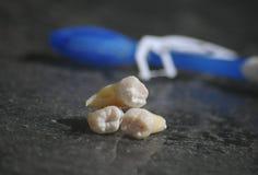Gezonde tanden en holtetand op grijze tandartsachtergrond Royalty-vrije Stock Afbeelding