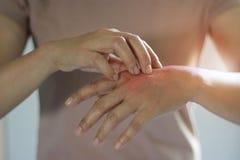 Gezondheidszorg en Medisch Concept Wijfje die de jeuk op haar hand krassen, oorzaak van het jeuken van huidziekten royalty-vrije stock foto