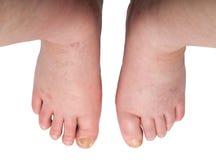 Gezwelde benen met paddestoelen Stock Foto's