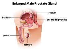 Ghiandola di prostata maschio ingrandetta illustrazione di stock