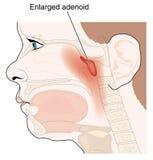 Ghiandole adenoidei ingrandette Fotografie Stock