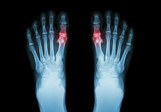 Gicht, rheumatoide Arthritis (Filmröntgenstrahl Fuß und -arthritis am ersten metatarsophalangeal Gelenk) (Medizin und Wissenschaf Lizenzfreie Stockfotografie
