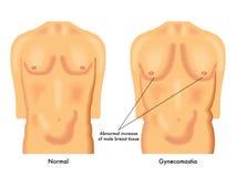 Ginecomastia illustrazione vettoriale