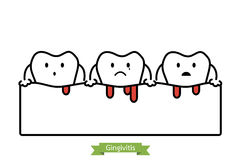 Gingivitis and bleeding - cartoon vector flat line style Royalty Free Stock Images
