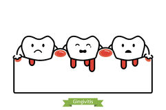 Gingivitis and bleeding - cartoon vector flat line style Royalty Free Stock Photography