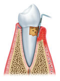 Gingivitis in its second stage stock illustration