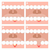 Gingivitis or Periodontitis illustration Royalty Free Stock Images