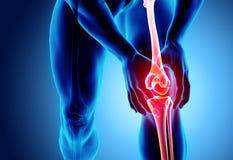 Ginocchio doloroso - raggi x di scheletro illustrazione vettoriale