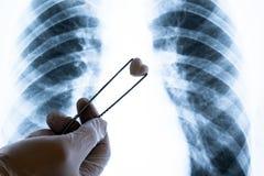 Giorno del cardiologo, o del biglietto di S. Valentino della st nella medicina Medico o tecnico di laboratorio in un guanto bianc fotografia stock libera da diritti