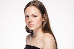 Giovane bello ritratto del fronte della donna delle lentiggini con pelle sana Immagini Stock Libere da Diritti