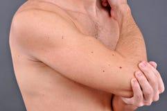Giovane con dolore del braccio Fotografia Stock Libera da Diritti