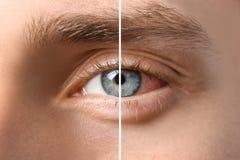 Giovane con gli occhi azzurri, primo piano fotografia stock libera da diritti