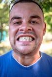 Giovane con un dente scheggiato fotografie stock